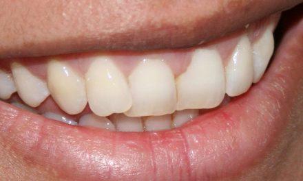 Blanqueamiento dental en unos sencillos pasos