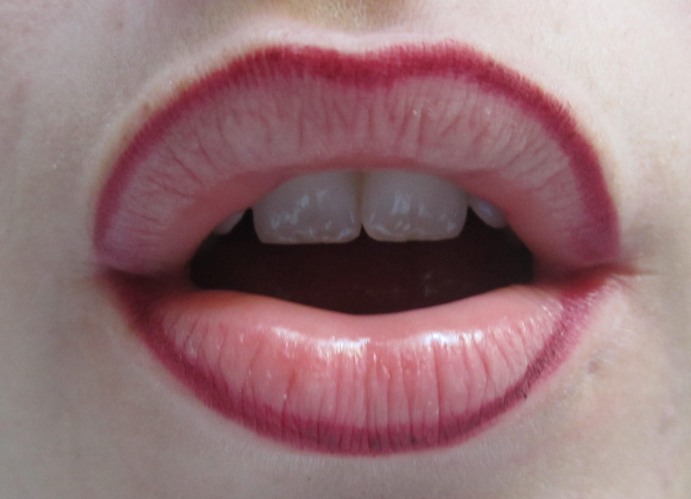 contorno de labios